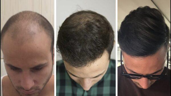 العوامل التى تحدد تكلفة زراعة الشعر في تركيا
